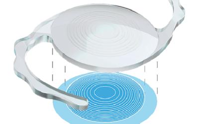 LIO suplementaria Sulcoflex®  Trifocal